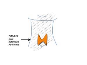 En la figura se resalta, en líneas punteadas, la inflamación de la tiroides y el área del dolor  que irradia hasta la mandíbula.