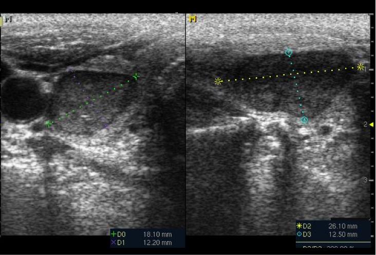 nodulo solido vascularizado tiroides