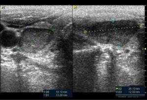 Figura 2. Paciente de 70 años, hombre, con nódulo tiroideo ovalado, de borde bien definidos, isoecogénico, no vascularizado. La citología aspirativa fue negativa, correspondiendo a un nódulo benigno.