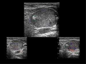 Figura 4. Paciente de 71 años, mujer, con nódulo grande, vascularizado, con cúmulo de calcificaciones en su interior. Citología mostró carcinoma medular de tiroides.