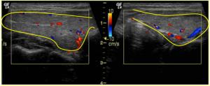 Figura 6. Vista longitudinal que muestra ambos lóbulos tiroideos normales. Técnica de Ecografía con Doppler observándose arterias y venas normales.