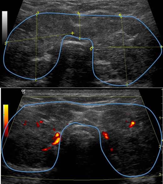 Figura 10. Tiroides con gran aumento de tamaño y extensas áreas hipoecogénicas con poco tejido conservado y ligera vascularidad en las escasas áreas normales.
