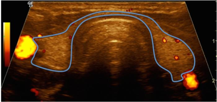 Figura 1B. Tirodes normal (vista antero-posterior): El color permite un mayor contraste para diferenciarla de los tejidos vecinos que circundan la glándula, incluyendo las arterias carótidas derecha e izquierda, en color brillante. El aspecto de la glándula es homogéneo.