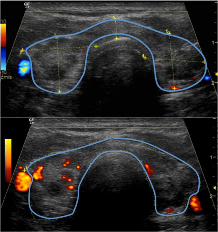 """Figura 4. Paciente de 41 años que presenta tiroides aumentada de tamaño, con áreas hipoecogénicas (oscuras) alternando con áreas de ecogenicidad normal, lo que da aspecto heterogéneo y parcheado a la tiroides. El Doppler muestra vascularidad dentro de la tirodies. Se observa la apariencia de """"gafa deportiva""""."""