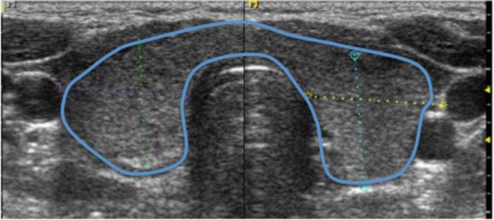 Figura 6. Tiroides aumentada de tamaño con pequeñas áreas hipoecogénicas y la mayor parte de la ecoestructura está conservada. No obstante la conservación de tejido tiroideo normal en la mayor parte de tiroides es suficiente para que la paciente permanezca eutiroidea (función tiroidea normal).