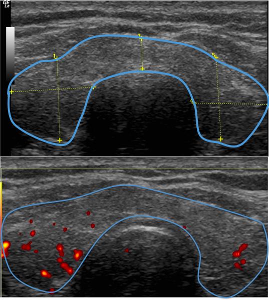 Figura 9. Tiroides aumentada de tamaño en forma difusa con alteración de la ecogenicidad con áreas hipoecogénicas alternando con áreas normales. Presenta al Doppler vascularidad conservada.